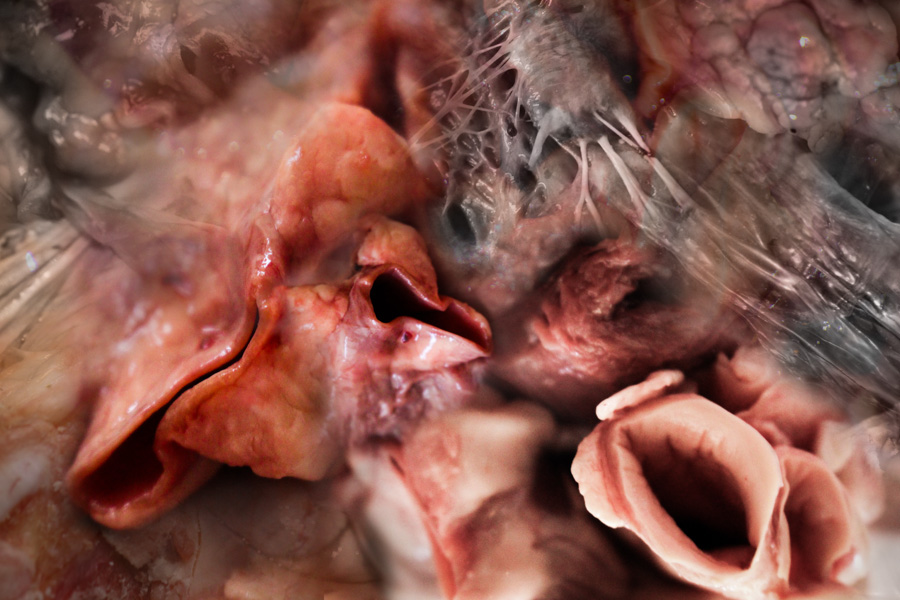 organ-layers-5